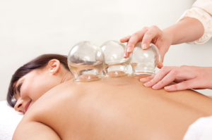 cupping-massage-winchmore-hill